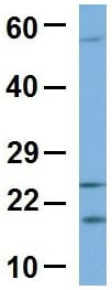 Western blot - Anti-LDOC1 antibody (ab86126)