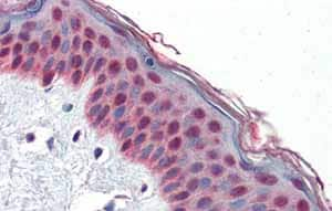 Immunohistochemistry (Formalin/PFA-fixed paraffin-embedded sections) - Anti-TCF7L1 antibody (ab86175)