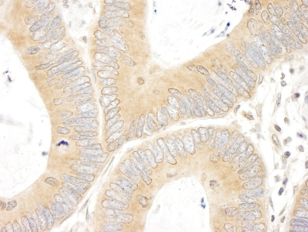 Immunohistochemistry (Formalin/PFA-fixed paraffin-embedded sections) - Anti-ABCF1 antibody (ab86223)