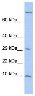 Western blot - Anti-MGP antibody (ab86233)