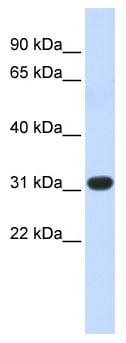Western blot - Anti-HOXC8 antibody (ab86236)