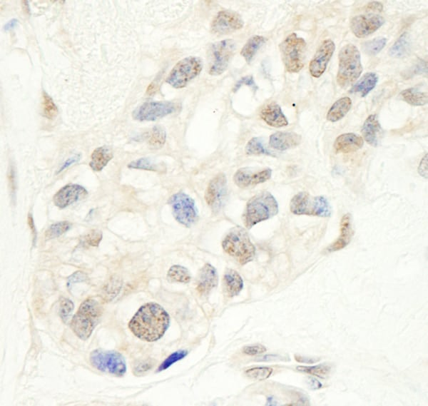 Immunohistochemistry (Formalin/PFA-fixed paraffin-embedded sections) - Anti-NFYC antibody (ab86237)
