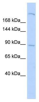 Western blot - Anti-APXL antibody (ab86265)