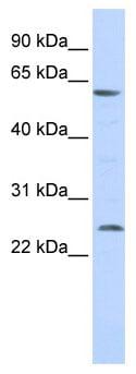 Western blot - Anti-VMAT1 antibody (ab86325)