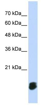 Western blot - Anti-Glutaredoxin 5 antibody (ab86411)