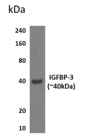 Western blot - Anti-IGFBP3 antibody [RM0096-11B16] (ab86461)