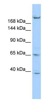 Western blot - Anti-KIF13B antibody (ab86528)