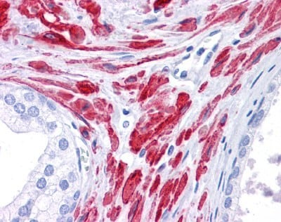 Immunohistochemistry (Formalin/PFA-fixed paraffin-embedded sections) - Anti-STAT5b antibody (ab86586)