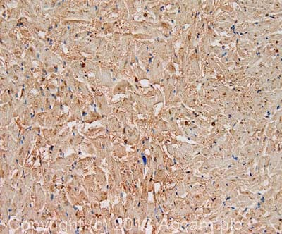 Immunohistochemistry (Formalin/PFA-fixed paraffin-embedded sections) - Anti-Lipoprotein lipase antibody (ab86927)