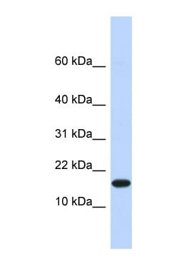 Western blot - Anti-PHD1/prolyl hydroxylase antibody (ab86980)