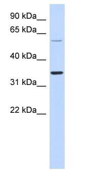 Western blot - Anti-ASPRV1 antibody (ab87168)