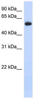 Western blot - Anti-FRK antibody (ab87201)
