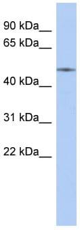 Western blot - Anti-ETS2 antibody (ab87783)