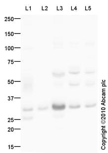 Western blot - Anti-Aquaporin 1 antibody (ab87845)