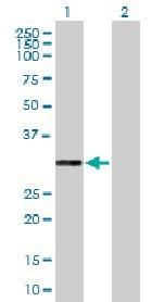 Western blot - Anti-PR3 antibody (ab88097)