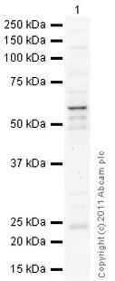 Western blot - Anti-MMP14 antibody (ab88618)