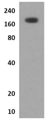 Western blot - Anti-Angiotensin Converting Enzyme 1 antibody [MM0072-12J16] (ab89102)