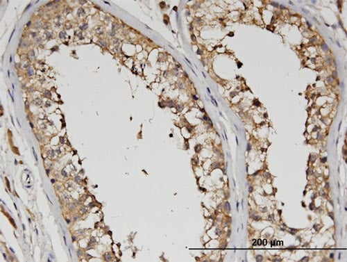 Immunohistochemistry (Formalin/PFA-fixed paraffin-embedded sections) - Anti-SLC13A5 antibody (ab89181)