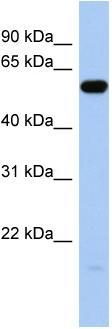 Western blot - Anti-ILDR1 antibody (ab89847)