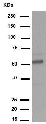 Western印迹-抗肾母细胞瘤蛋白抗体[CAN-R9(IHC)-56-2 ](AB89901)