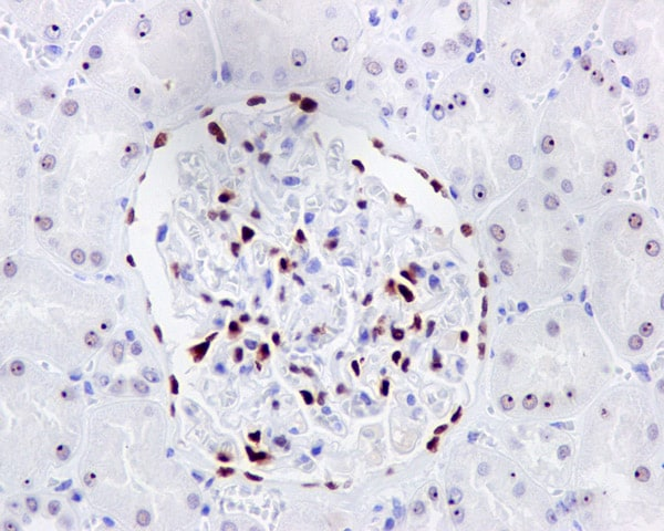 Immunohistochemistry (Formalin/PFA-fixed paraffin-embedded sections) - Anti-Wilms Tumor Protein antibody [CAN-R9(IHC)-56-2] (ab89901)