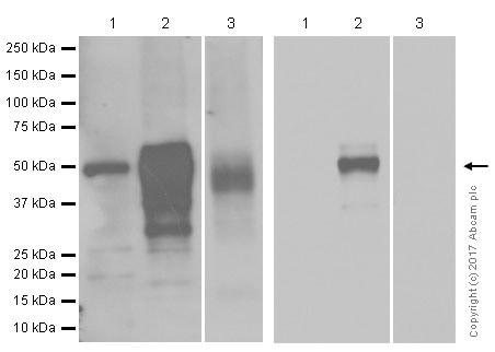 Western blot - Anti-Wilms Tumor Protein antibody [CAN-R9(IHC)-56-2] (ab89901)