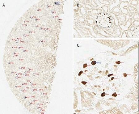 免疫组织化学(福尔马林/PFA固定石蜡包埋切片)-抗Wilms肿瘤蛋白抗体[CAN-R9(IHC)-56-2](ab89901)