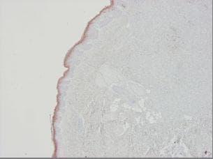 Immunohistochemistry (Formalin/PFA-fixed paraffin-embedded sections) - Anti-Cytokeratin 10 antibody [RKSE60] (ab9025)
