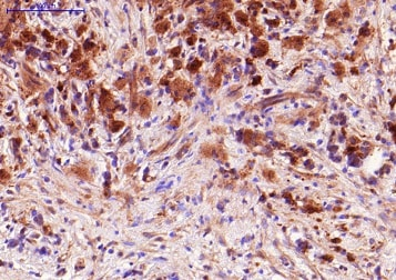 Immunohistochemistry (Formalin/PFA-fixed paraffin-embedded sections) - Anti-TNF alpha antibody [P/T2] (ab9579)