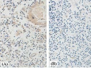 Immunohistochemistry (Formalin/PFA-fixed paraffin-embedded sections) - Anti-HYAL2 antibody (ab90004)