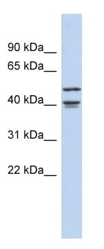 Western blot - Anti-APOBEC4 antibody (ab90051)