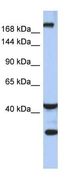 Western blot - Anti-Dispatched antibody (ab90068)