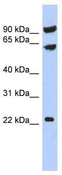 Western blot - Anti-TIGD3 antibody (ab90265)