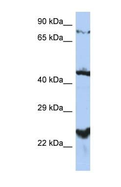 Western blot - Anti-MRS2 antibody (ab90295)