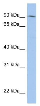 Western blot - Anti-LRRC33 antibody (ab90303)