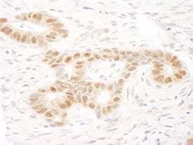 Immunohistochemistry (Formalin/PFA-fixed paraffin-embedded sections) - Anti-MAML2 antibody (ab90592)
