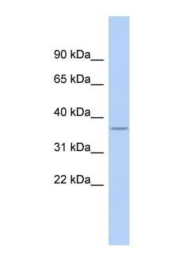 Western blot - Anti-RPL5 antibody (ab90698)