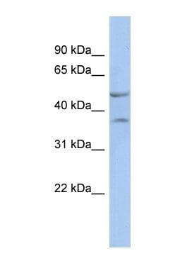 Western blot - Anti-nkx6.1 antibody (ab90706)