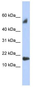 Western blot - Anti-TEX19 antibody (ab90953)