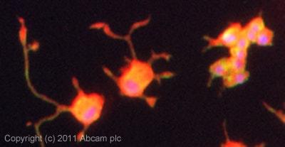Immunocytochemistry/ Immunofluorescence - Anti-liver Arginase antibody (ab91279)