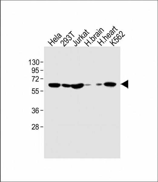 Western blot - Anti-IFNAR1 antibody (ab91466)