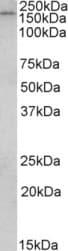 Western blot - Anti-CLIP170 antibody (ab91474)