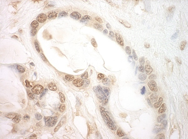 Immunohistochemistry (Formalin/PFA-fixed paraffin-embedded sections) - Anti-eIF2B epsilon antibody (ab91565)