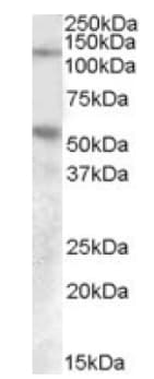 Western blot - Anti-Palladin antibody (ab92288)