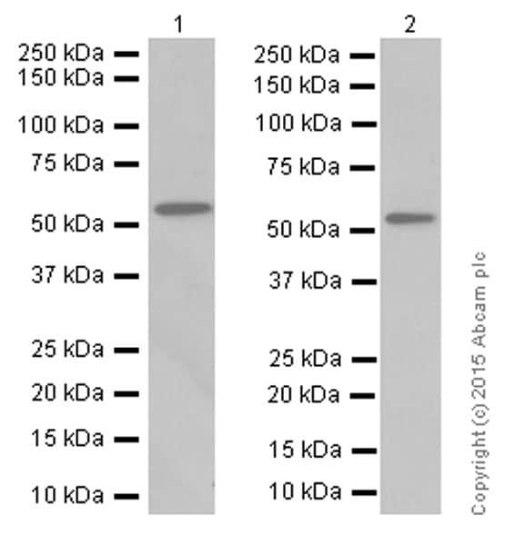 Western blot - Anti-Estrogen Receptor beta antibody [EPR3777] (ab92306)