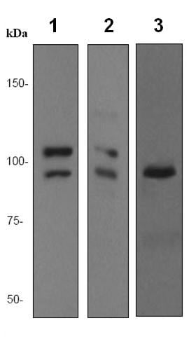Western blot - delta 1 Catenin antibody [EPR357(2)] (ab92514)