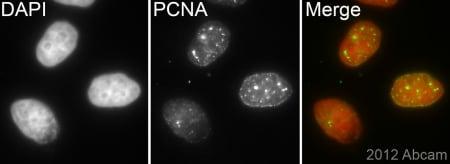 Immunocytochemistry/ Immunofluorescence - Anti-PCNA antibody [EPR3821] (ab92552)