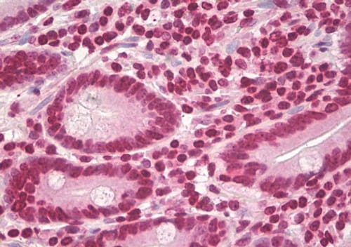 Immunohistochemistry (Formalin/PFA-fixed paraffin-embedded sections) - Anti-Cyclin D1 antibody (ab92566)
