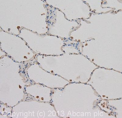 Immunohistochemistry (Formalin/PFA-fixed paraffin-embedded sections) - Anti-SOCS2 antibody (ab92847)
