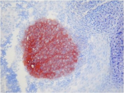 Immunohistochemistry (Frozen sections) - Anti-TAG1 antibody [X9A9] (ab93082)